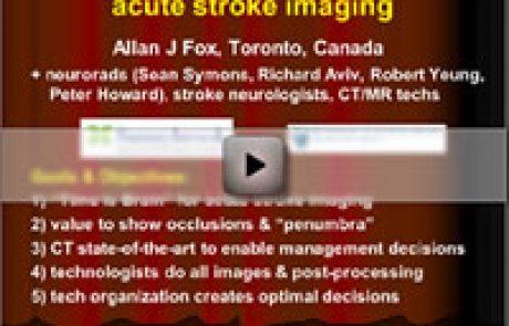 Acute Stroke Imaging